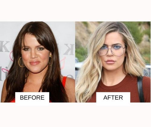 Khloe Krdashian lip job