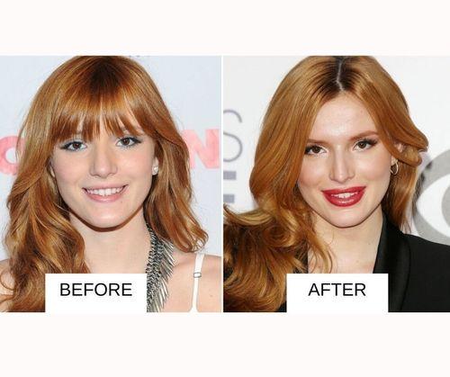 Bella Thorne lip job