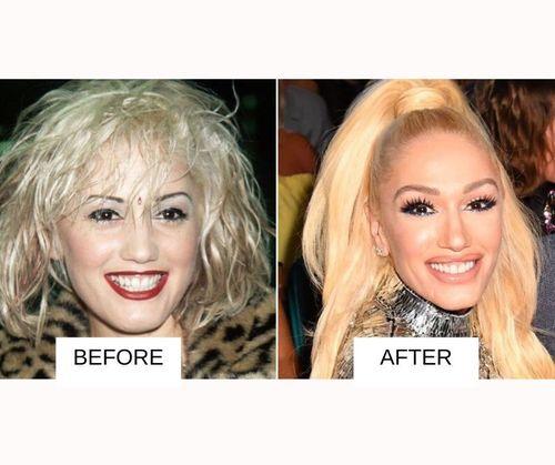 Gwen Stefani lip job