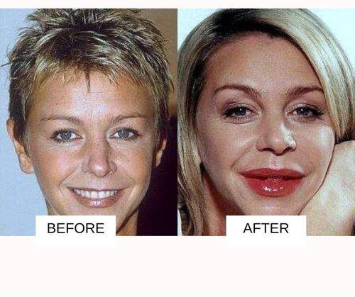 Leslie Ash lip job