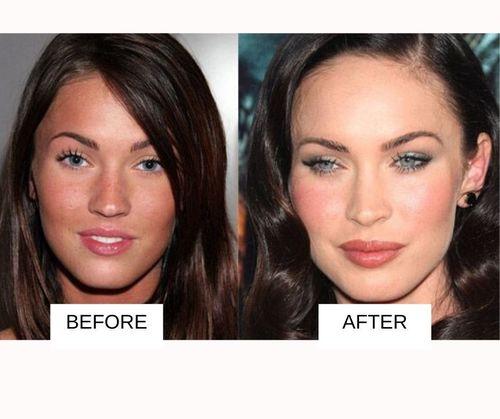 Megan Fox lip job