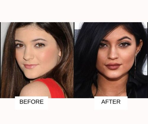 Kylie jenner brow lift