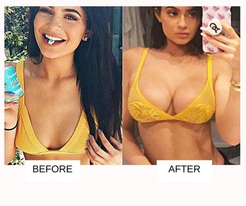 Kylie jenner boob job