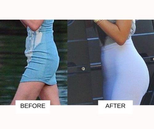 Kylie jenner Butt Lift