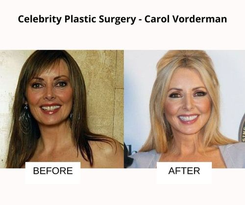 Carol Vorderman plastic surgery