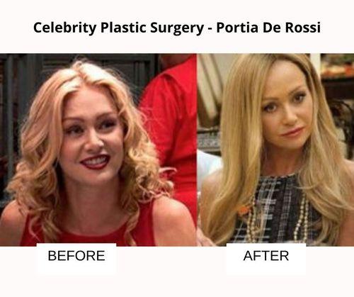 Portia De Rossi plastic surgery