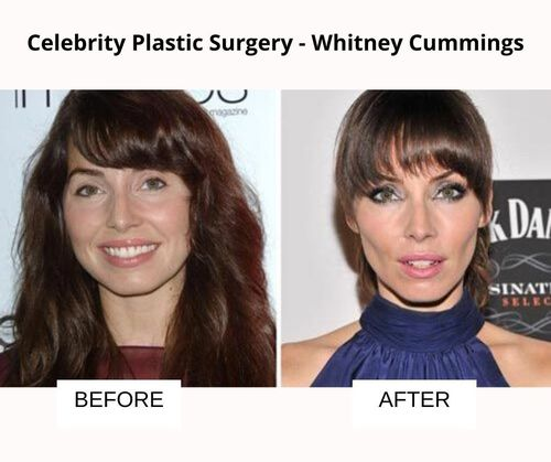 Whitney Cummings plastic surgery