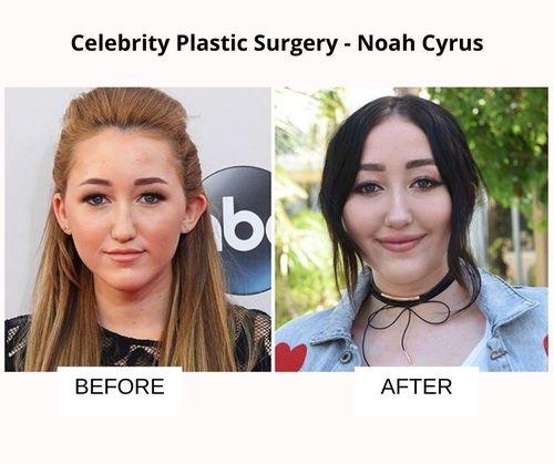 _Noah Cyrus plastic surgery