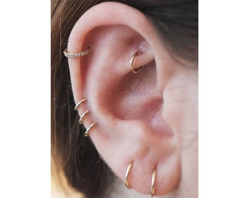 10 Auricle