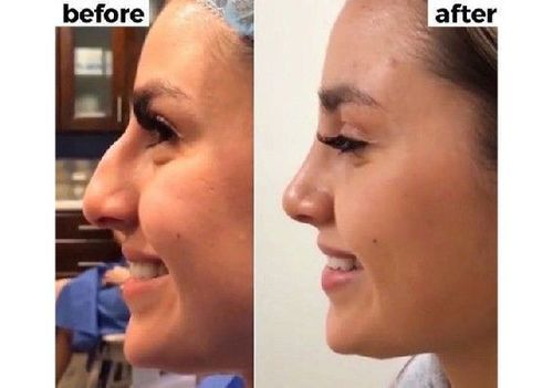 Nose_job_before_after