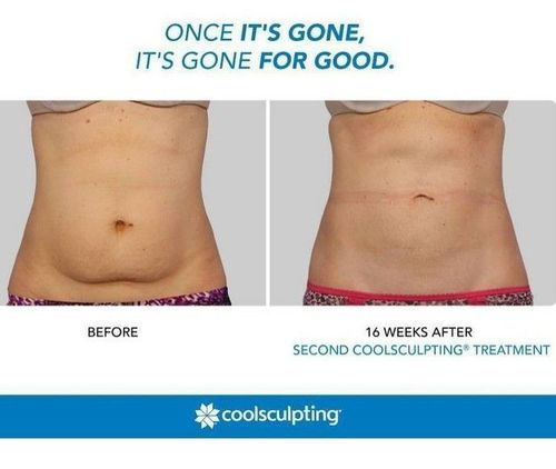 1 what is coolsculpting