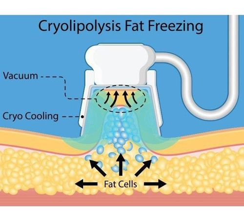 1 what is fat freezing